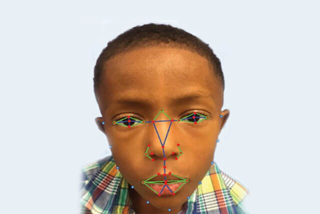 disease-diagnosis-facial-recognition